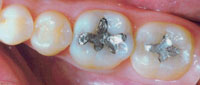amalgam-before