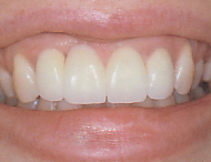 After Porcelain Crowns Attached